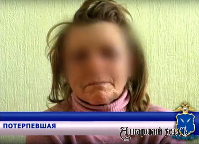 ВЭнгельсе молодые люди изнасиловали ипытались сжечь 52-летнюю женщину