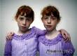 Близнецы живут на 5-6 лет дольше других людей